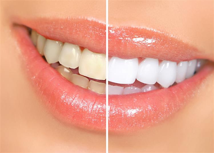 Quatro dicas para ter os dentes mais brancos