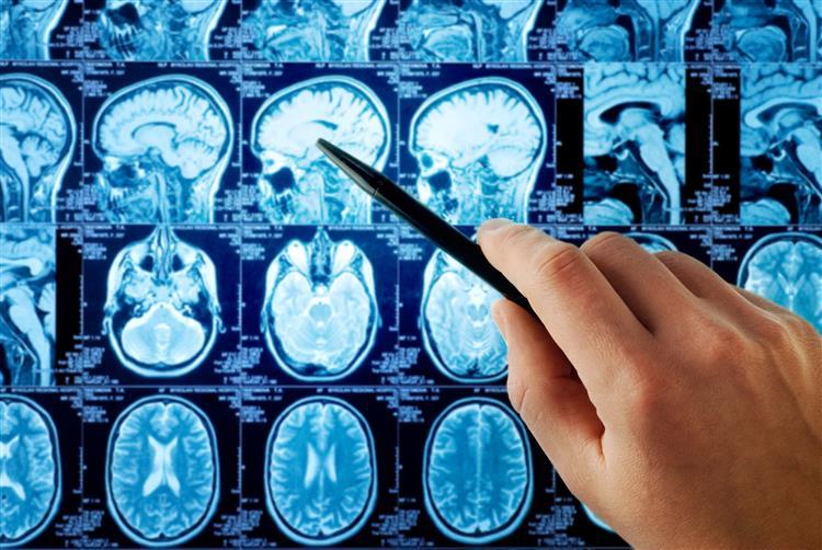 Português eleito Melhor Jovem Investigador na área da esquizofrenia